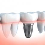 Dental implant cost- MediGence