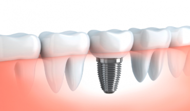 7 Clear Benefits of Opting for Dental Implant