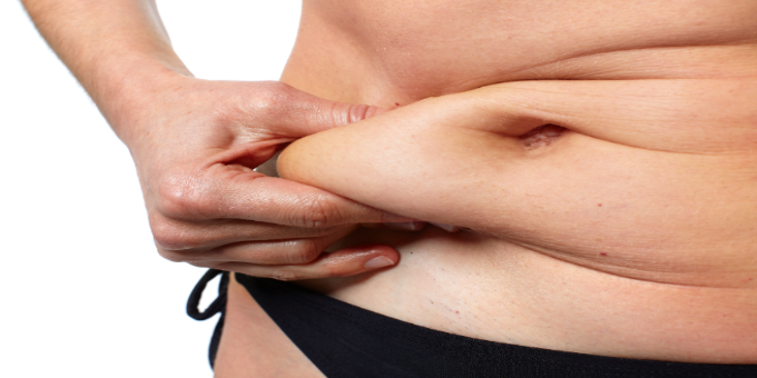 7 Benefits of Sleeve Gastrectomy That You Probably Did Not Know