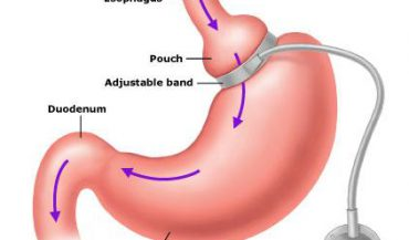 Lap Gastric Banding in India | Gastric Banding Cost