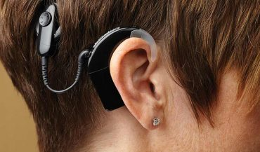 What is the cost of cochlear implant device in India?