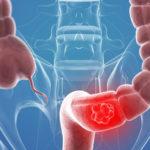colon cancer cost
