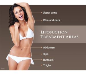 liposuction treatment in India