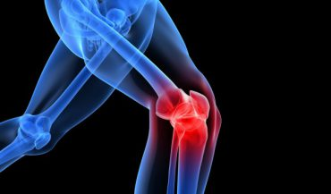 This Treatment Can Help Patients With Arthritis. Not Total Knee Replacement