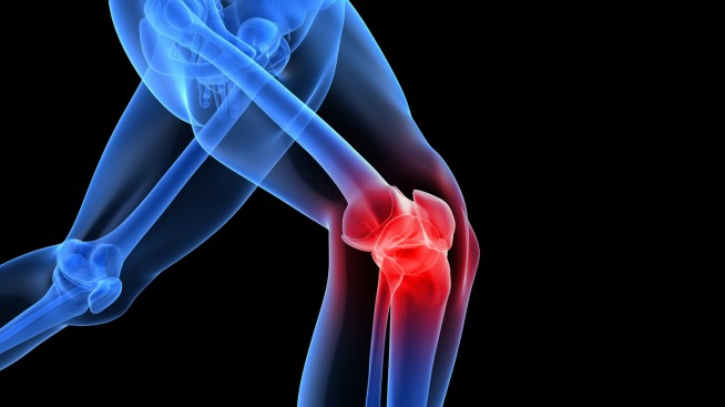 Corticosteroid Injections - A Nonsurgical Treatment For Knee Pain