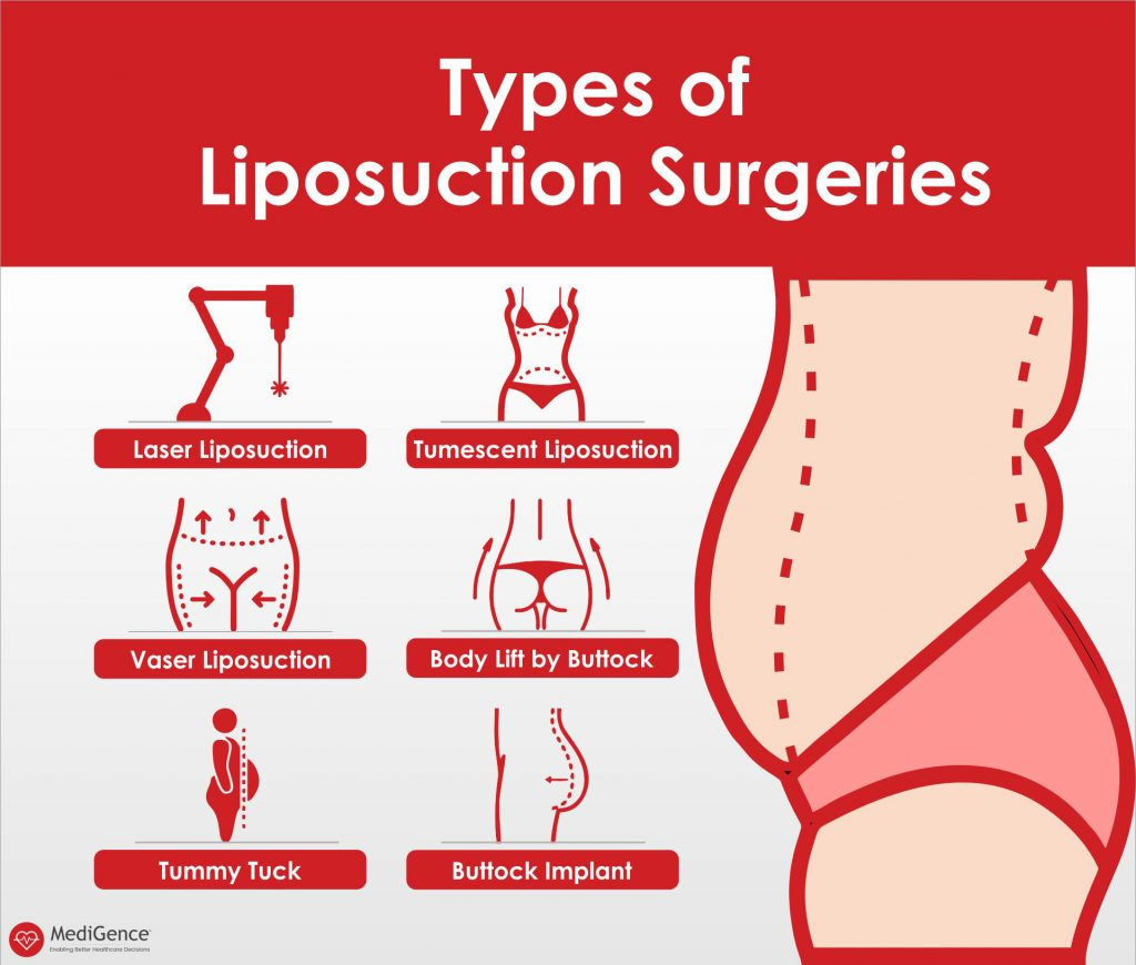 types-of-liposuction-surgeries-medigence