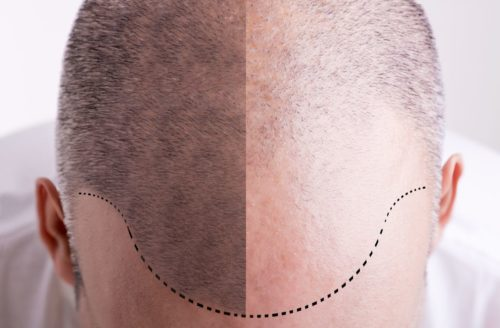 Dealing With Hair Loss After Craniotomy