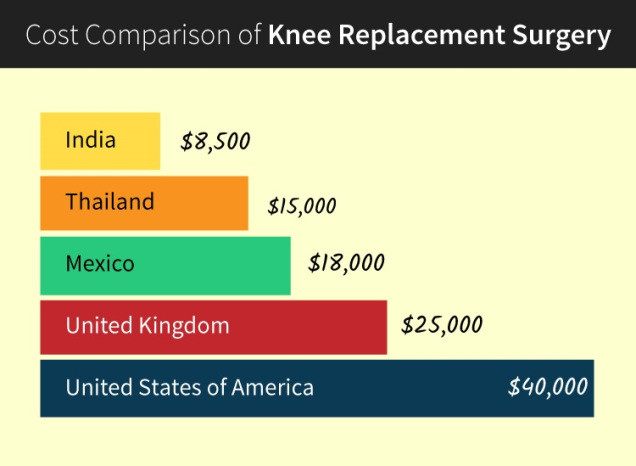 Knee Replacement Surgery Cost Guide