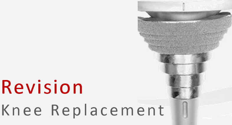 Everything You Need To Know About Knee Replacement Revision Surgery