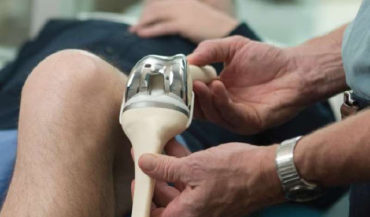 What is the cost of Knee Replacement in India, Thailand, Singapore, and Turkey? Knee Replacement Surgery Cost Guide – Procedure Cost Breakdown