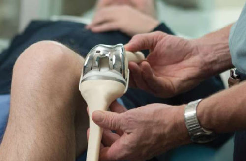 Knee Replacement Surgery Cost Guide – Procedure Cost Breakdown, How To Reduce Cost