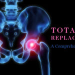 total-hip-replacement-a-comprehensive-guide