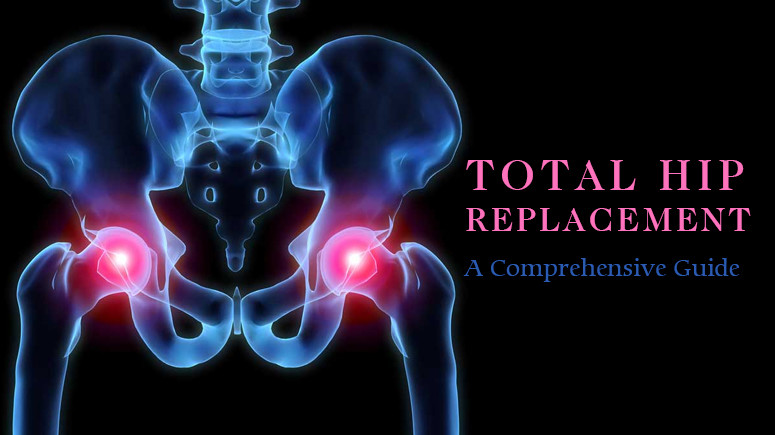 Hip Replacement Surgery Cost Guide – Procedure Cost Breakdown, Tips To Select Hospital