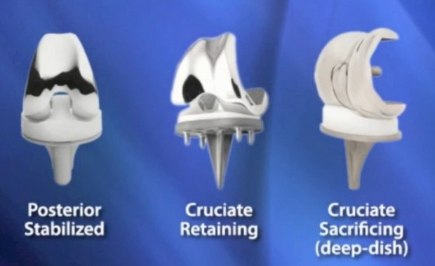 types of total knee implants for knee replacement surgery cost guide