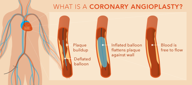 Coronary Angioplasty and Stent Insertion