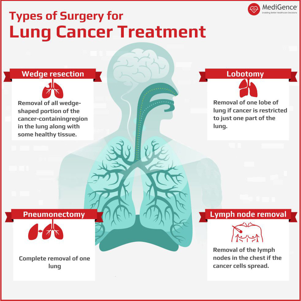 Types of Surgery in Lung Cancer Treatment