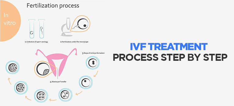 IVF-treatment-process and cost