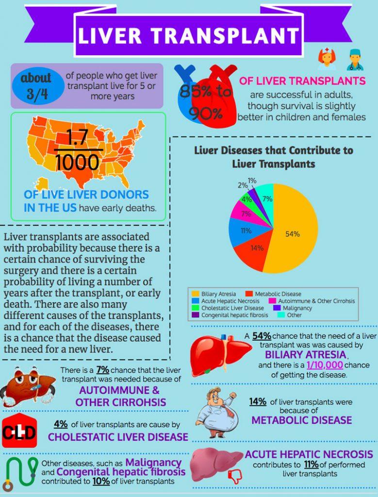 Liver Transplant Infograph