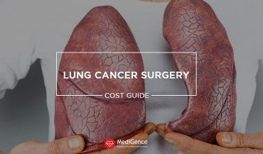 Lung Cancer Surgery Cost Guide: Treatment Cost Breakup, Best Hospitals For Lung Cancer Treatment