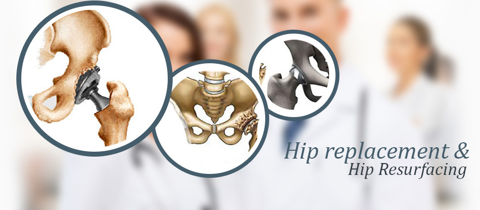 Hip Resurfacing vs Hip Replacement: Know The Difference