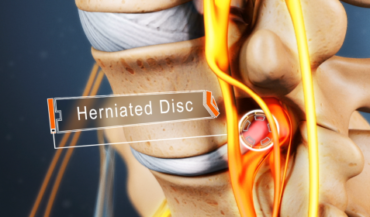 Discectomy Versus Microdiscectomy: Which One Should You Go For?