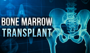 Bone Marrow Transplantation: What All Conditions Can Be Treated With It?