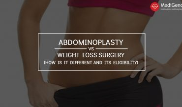 Tummy Tuck versus Gastric Sleeve surgery: How is it different and its eligibility