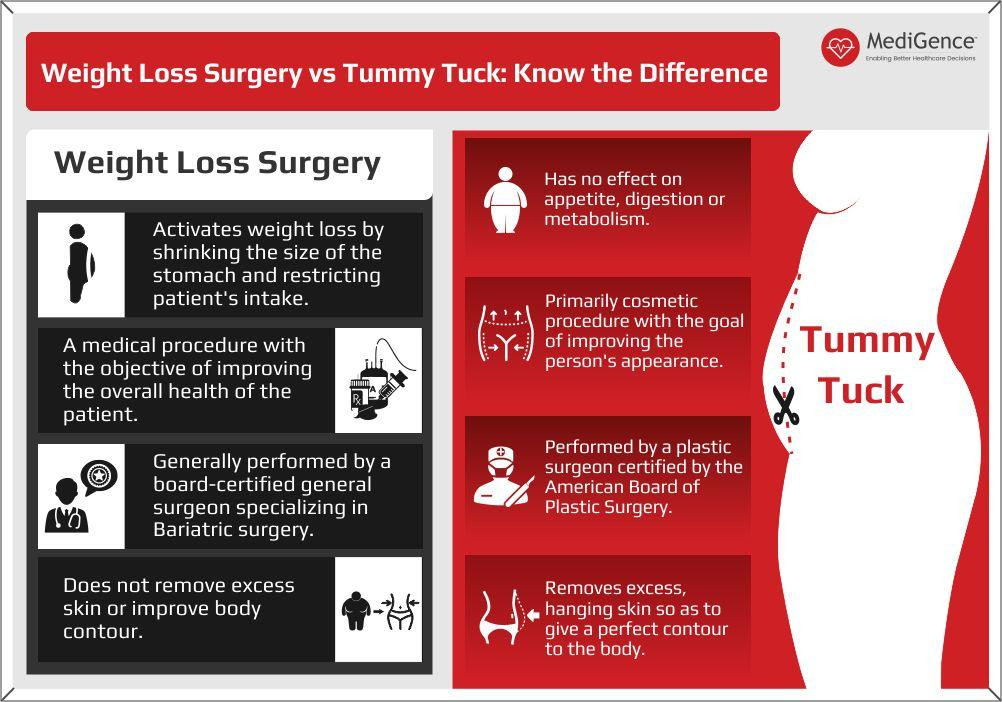 weight loss surgery vs abdominoplasty surgery