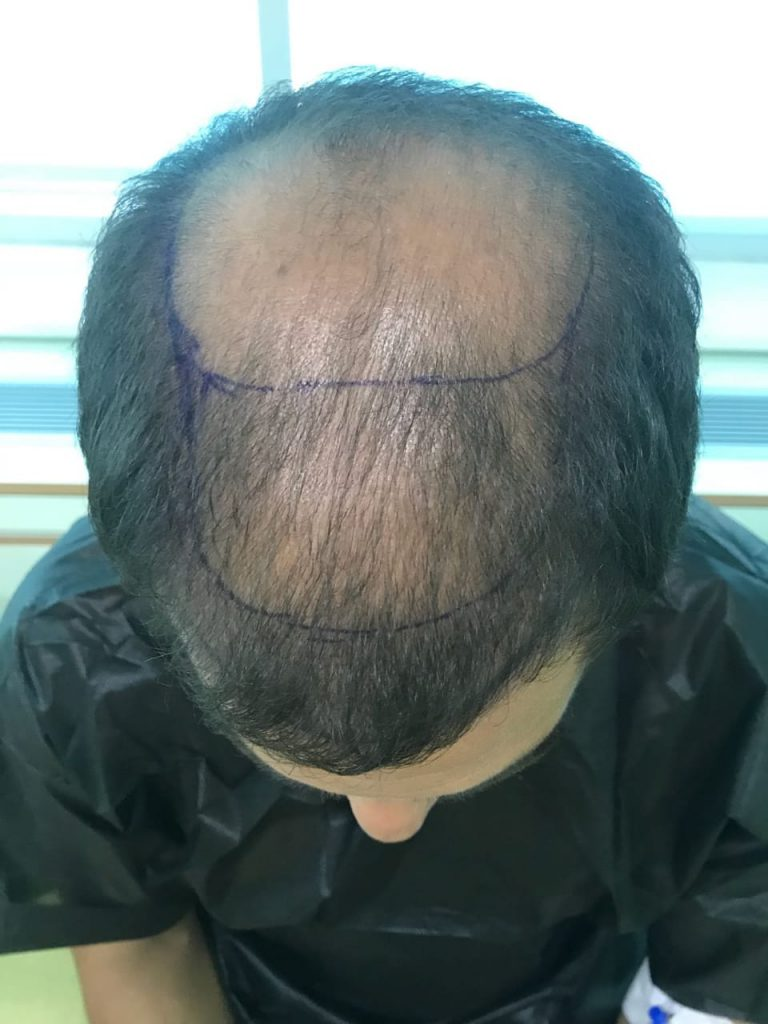 Successful Hair Transplantation in Turkey