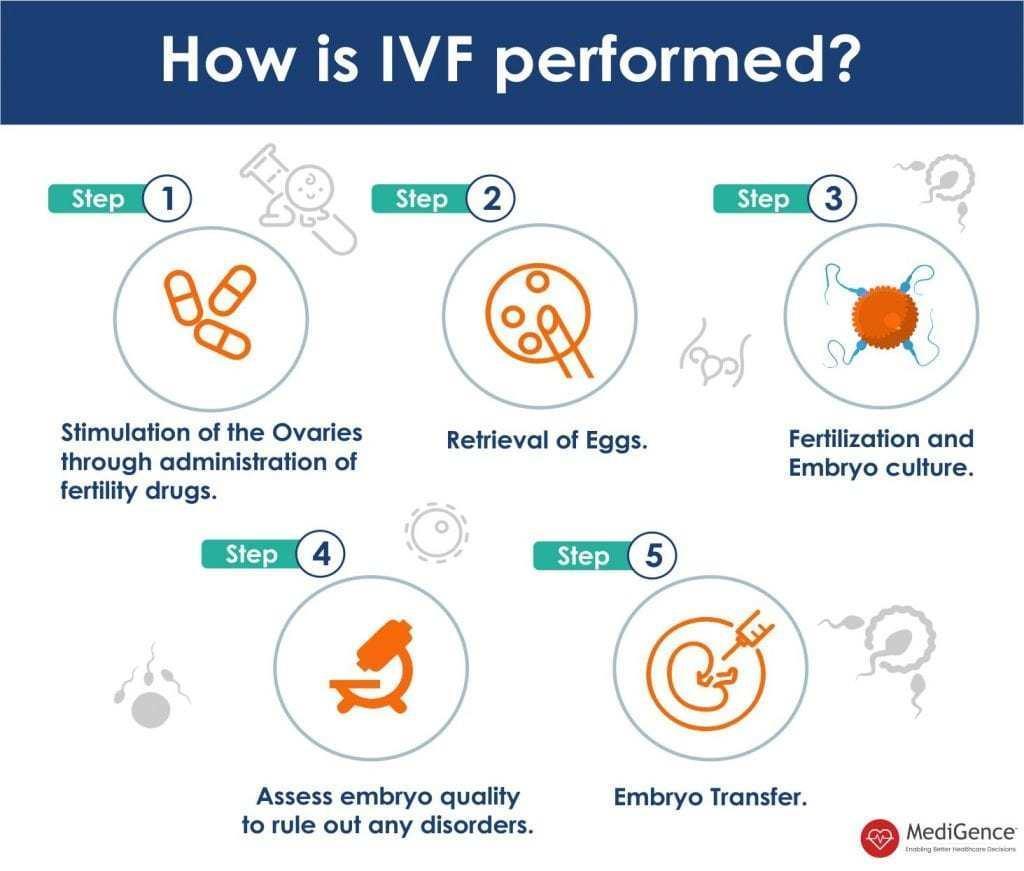 How is IVF Procedure performed | MediGence