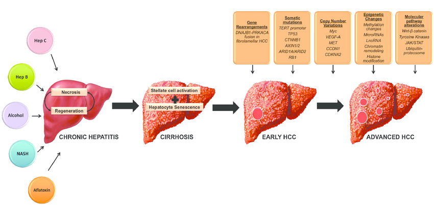 Pathogenesis-of-Hepatocellular-Carcinoma-Chronic-exposure-of-the-liver-to-injury-from