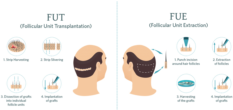 FUE-vs-FUT-Hair-Transplant.-Techniques