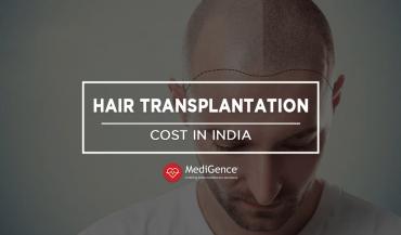 Hair Transplantation Cost in India
