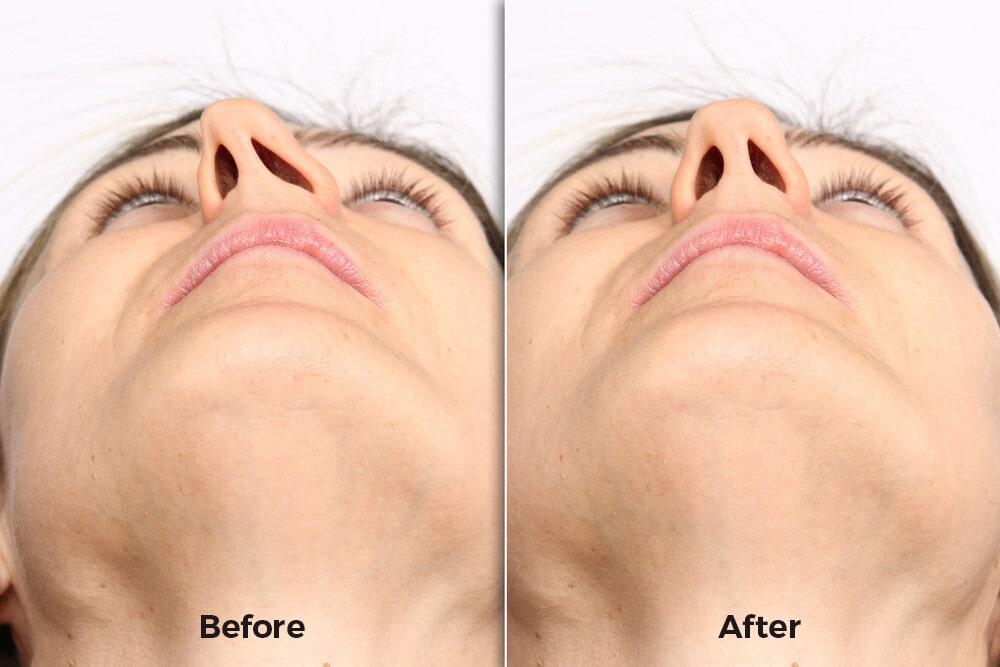 صور قبل وبعد جراحة الحاجز الأنفي ، واحدة من أكثر عمليات التجميل المرغوبة في كوريا الجنوبية