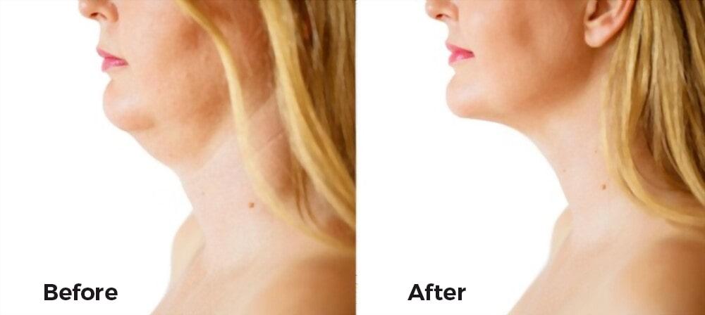 صور قبل وبعد تنفيذ الذقن في كوريا الجنوبية. تعرف على المزيد حول التكلفة والعيادات وجراحي التجميل في كوريا الجنوبية