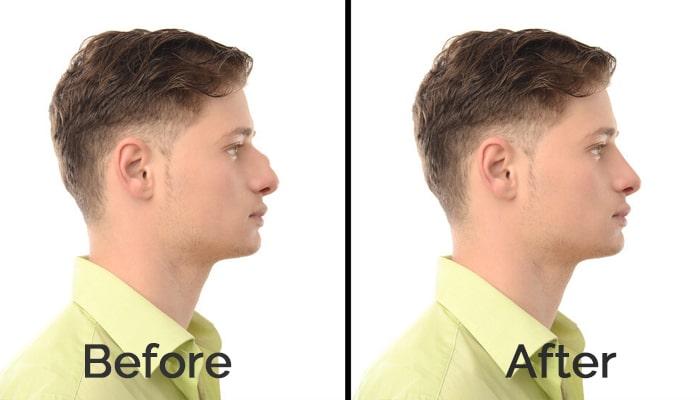 صور قبل وبعد جراحة تجميل الأنف لإحدى أفضل العيادات في كوريا الجنوبية. تعرف على أفضل العيادات والجراحين وتكلفة إجراءات جراحة التجميل في كوريا الجنوبية.
