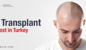 Hair Transplant Cost in Turkey | Top Clinics and Best Surgeons