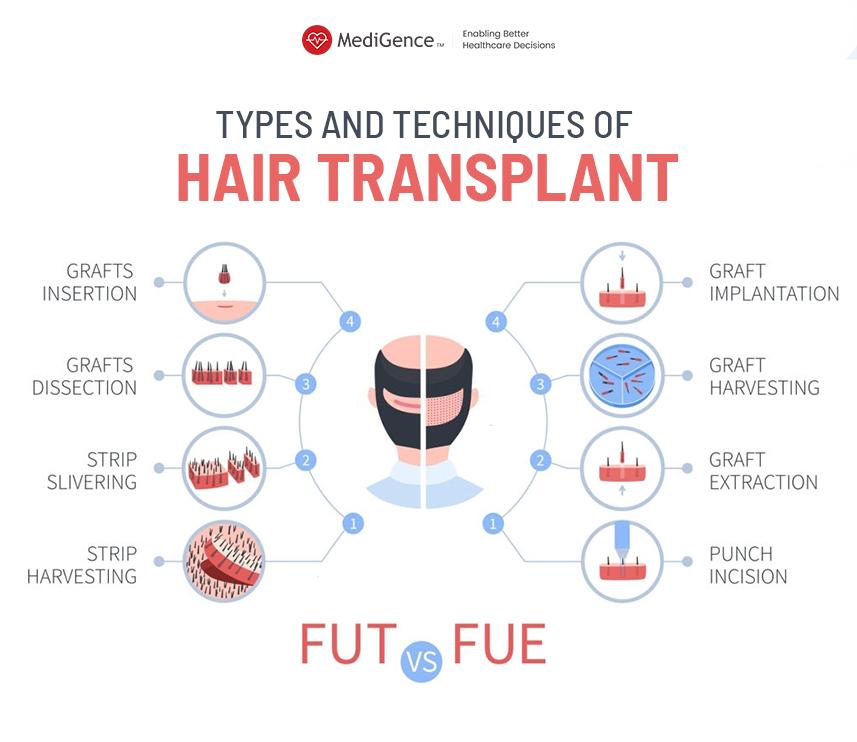 أنواع زراعة الشعر في تركيا