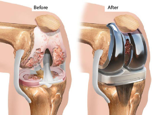 Total Knee Replacement Surgery (U/L): Causes, Symptoms and Recovery | MediGence