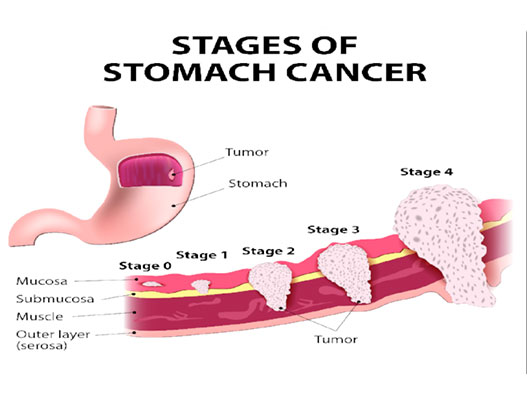 Stomach Cancer: Cost, Procedure and Clinics | MediGence