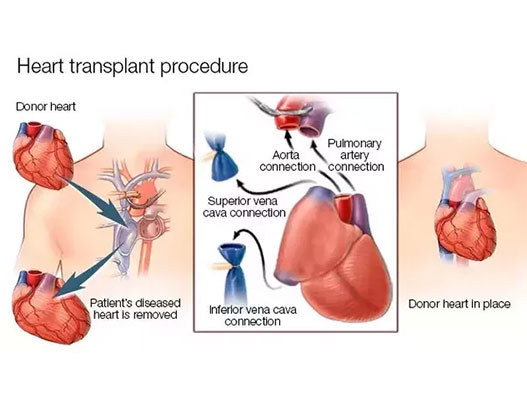 Heart Transplant Starting from USD 38000: Cost, Treatments, and Hospitals