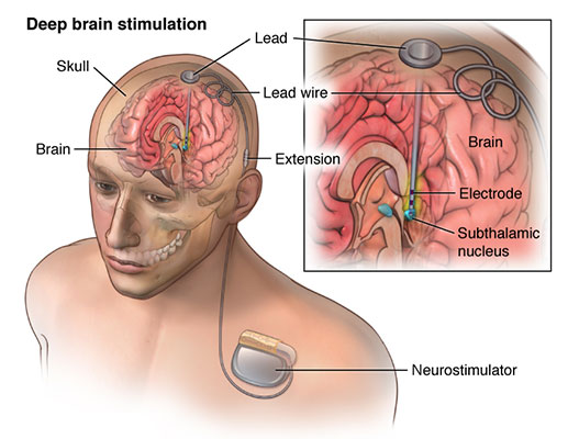 Deep Brain Stimulation: Cost, Procedure and Clinics | MediGence