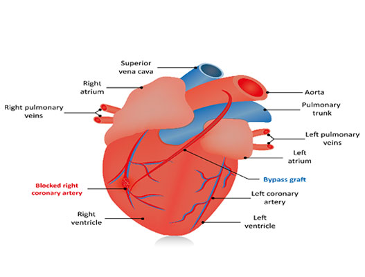 Coronary Artery Bypass Grafting Cost