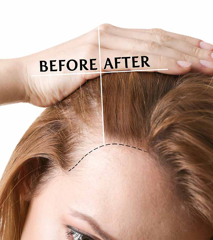 Hair Transplants : Procedure, Benefits and Recovery | MediGence