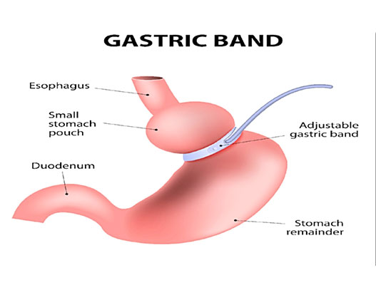 Lap Gastric Banding Surgery: Procedure, Conditions and Recovery