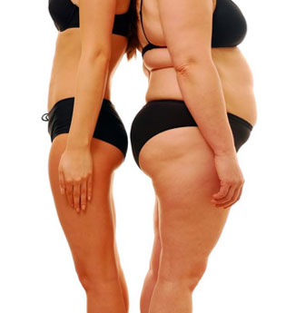 Bariatric Surgery: Hospitals, Prices, Cost & Reviews - MEDIGENCE
